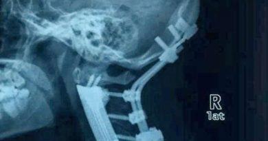 coloana vertebrala imprimata