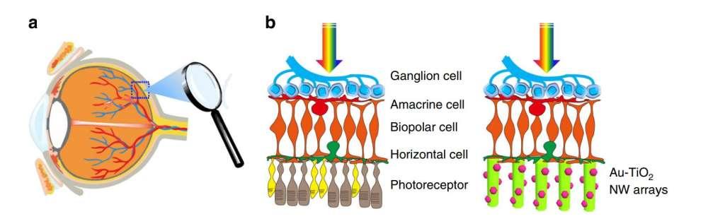 implant ochi nanoparticule aur