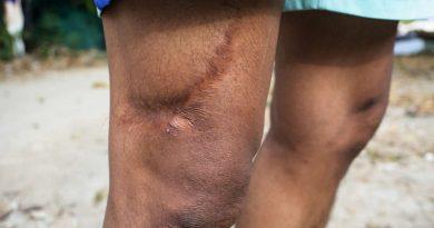 cicatrici-descoperiri-medicale